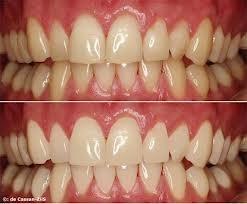 precio blanqueamiento dental sanitas