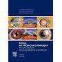 Atlas Técnicas Complejas Cirugía Segmento Anterior Belmonte