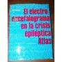 El Electro-encefalograma En La Crisis Epiléptica Karbowski