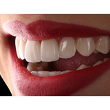 Blanqueamiento Dental Led +limpieza Dental + Fluor