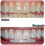 Blanqueamiento Dental Mas Limpieza Con Ultrasonido