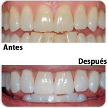 Blanqueamiento Dental Combinado(profesional + Ambulatorio)