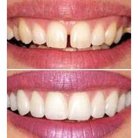 Carillas Dentales, Carillas Estéticas