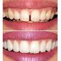 Carillas Dentales, Carillas De Porcelana Consulta