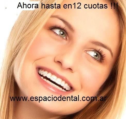 Ortodoncia Lingual En Cuotas !! En Zona Oeste 011- 4662-3677