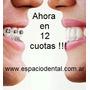 Ortodoncia Lingual En 12 Cuotas Sin Interes! 011- 4662-2689